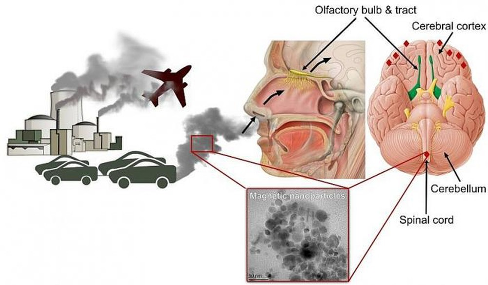 Ô nhiễm không khí gây bệnh gì?